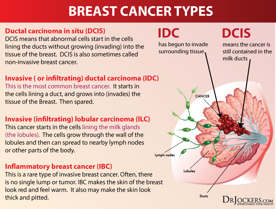 PREVENTBREASTCANCER_Types3